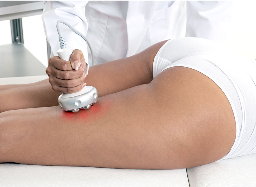 Hautstarffung mit Radiofrequenz | CRISTAL Skin ICE AESTHETIC