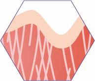 CRISTAL Skin Erwärmen von subkutanem Gewebe