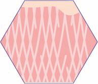 CRISTAL Skin Kontraktion und Straffung von bestehenden Kollagen- und Elastinfasern